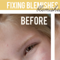Fixing Photo Blemishes in Photoshop
